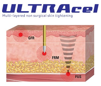 ULTRAcel Treatment